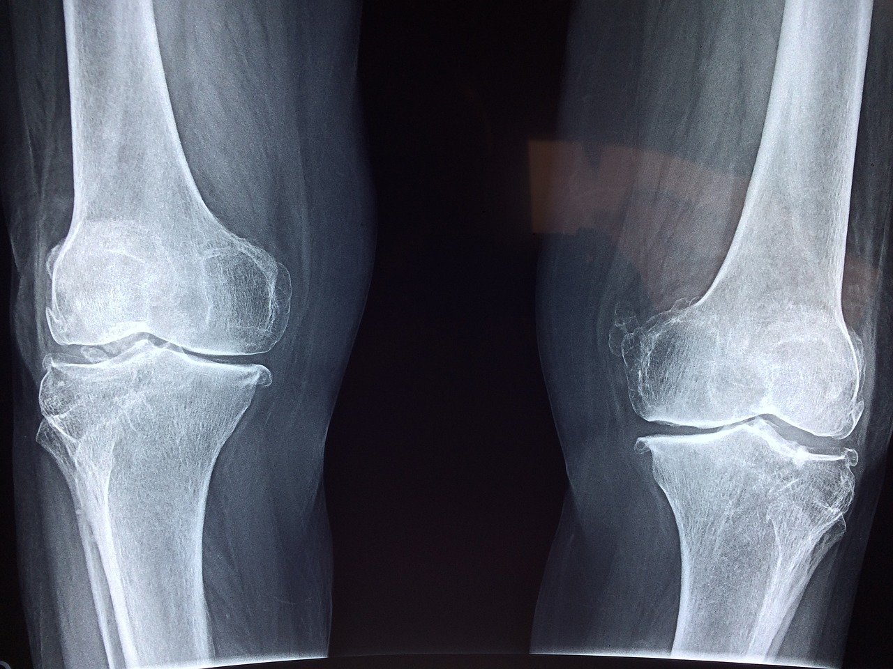bone x-ray